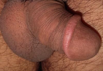 Flacid penis with Peyronie's disease