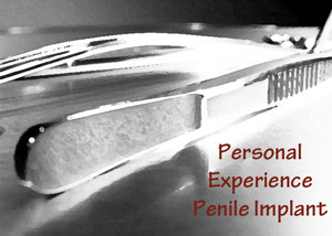 Personal experienc of penile implants