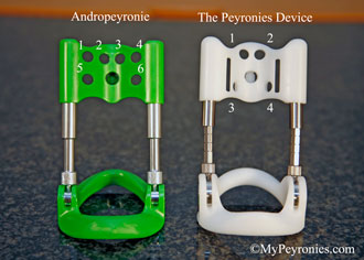 Andropeyronie compared with the Peyronies Device