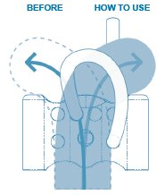 How to treat left side curvature with traction device