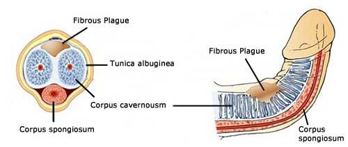 Penis plaque cause of penis problems