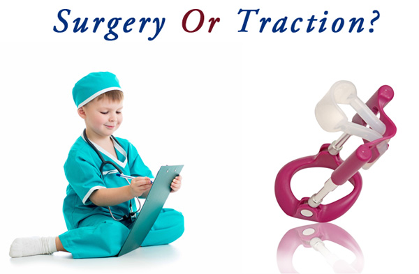 Peyronie's surgery or traction therapy